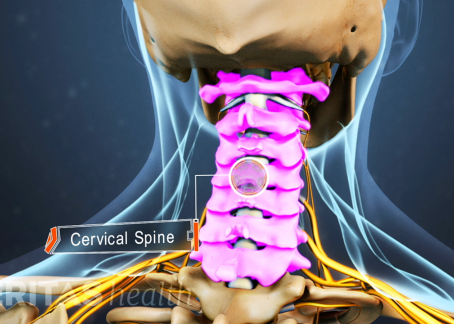 Best scientific Treatment for Neck Pain Patients