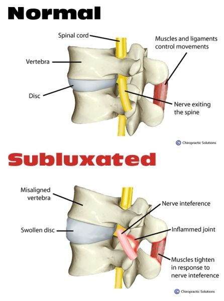 What does the spine look like when it is misaligned?
