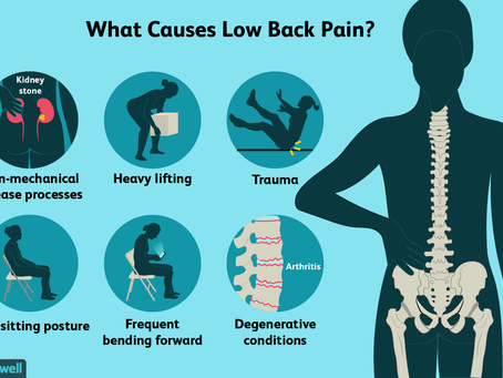 What is most likely to trigger a low back pain episode?