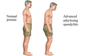 Ankylosing Spondylitis. What is it and can Chiropractic Help ?