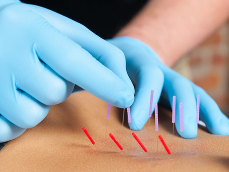 Is dry needling effective for the management of plantar heel pain or plantar fasciitis