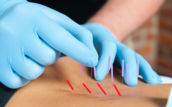 Dry Needling at Health Wise CHiropractic
