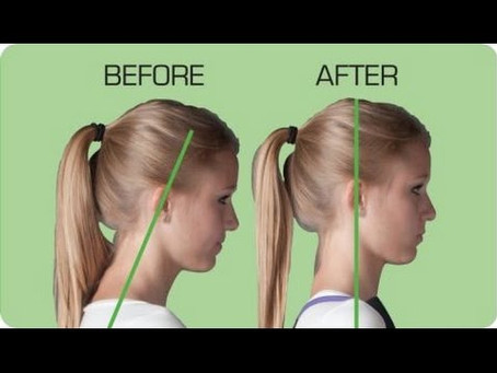 Does Bad Posture Lead To Headaches?