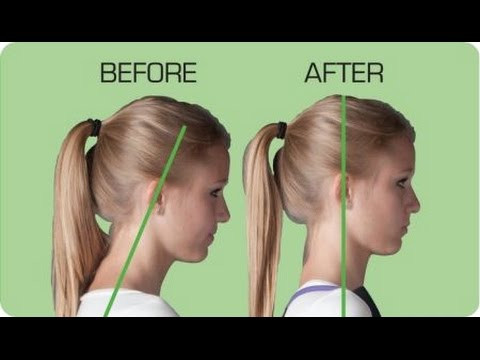 Do you have forward head posture? Healthwise Chiropractic may have the answer!