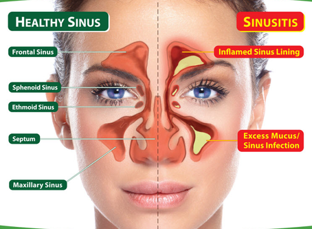 Can a chiropractor drain the sinuses?