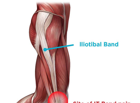 Iliotibial Band Syndrome and How Chiropractic Can Help