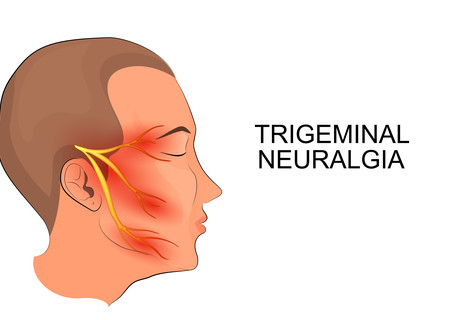 What is Trigeminal Neuralgia? Can Health Wise Chiropractic Help?