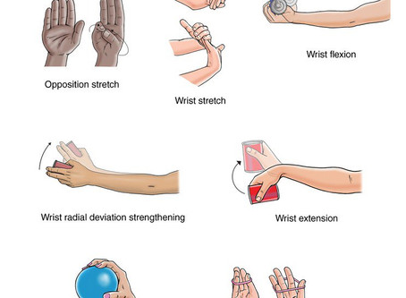 Painful wrist ? It could be de Quervains Tenosynovitis