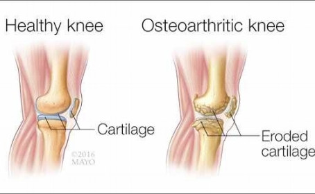 Osteoarthritis, How Health Wise Chiropractic Can Help