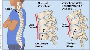 Scheuermanns Disease and how Chiropractic Can Help