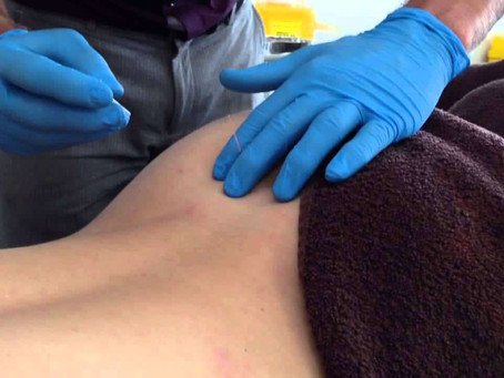 Does Dry needling scientifically work on hip pain/