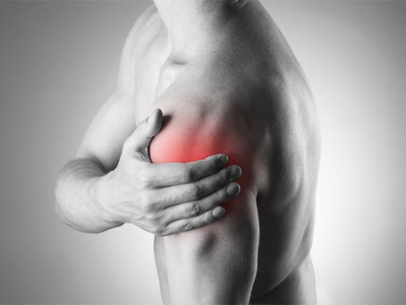 Calcific Bursitis and Tendonitis Causing Shoulder Pain
