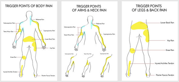 Trigger Point Therapy at Health Wise Chi