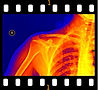T2H color X ray.jpg