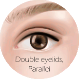 Types of Eyelids - Parallel crease.png