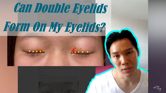 If You Have These Signs, You Can Make A Double Eyelid!