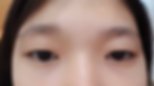Single Eyelids Opti-fold
