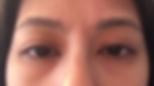 Uneven Eyelids Opti-fold