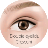 Types of Eyelids - Crescent crease.png