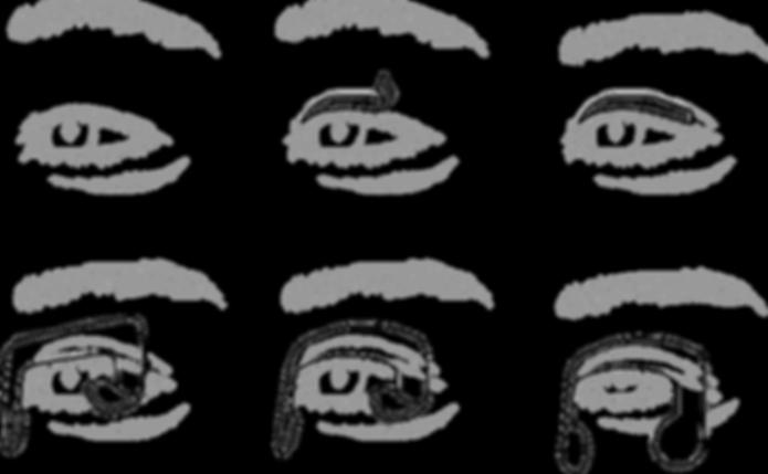 Patent Diagram Left eye.png