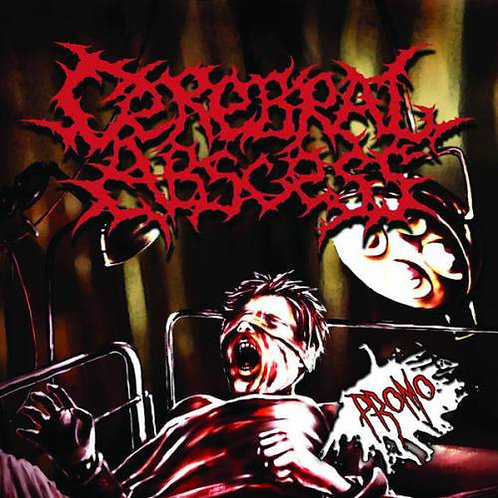 """Cerebral Abscess """"Cerebral Abscess"""" CD"""