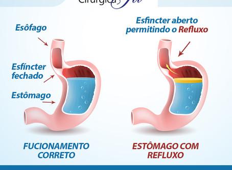 Refluxo Esofágico (DRGE):