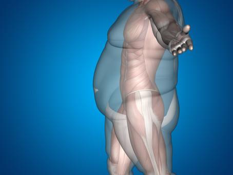 Pré e Pós-Operatório da Cirurgia Bariátrica