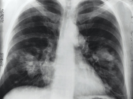Occupational Lung Disease - Why Controls are Necessary