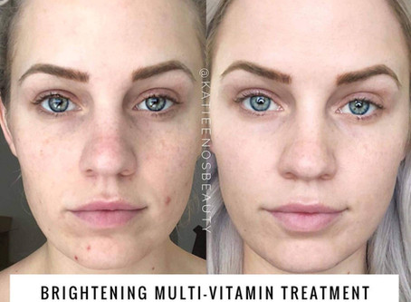 Brightening Multi-Vitamin Treatment