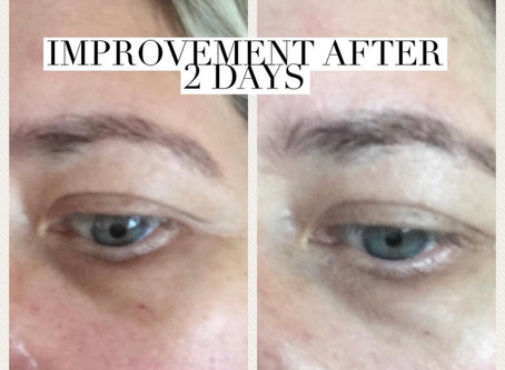 Senederm Dark Circle under eye treatment