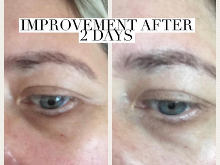 Senederm Dark Circle under eye treatment