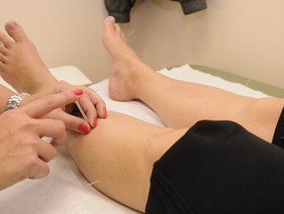 Positive Side effects of Acupuncture