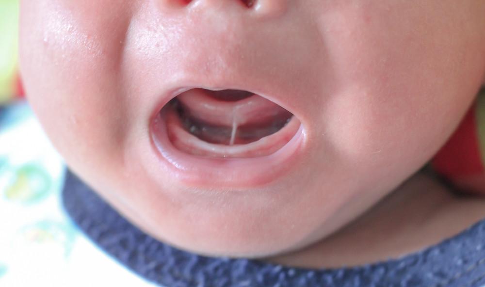 Tongue-tie, ankyloglossia