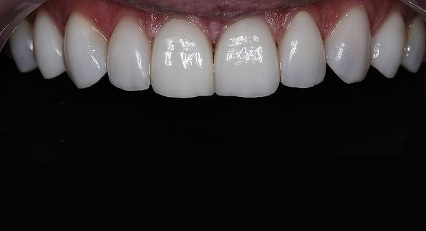 vinirlər-vinirler-stomatoloji klinika-di
