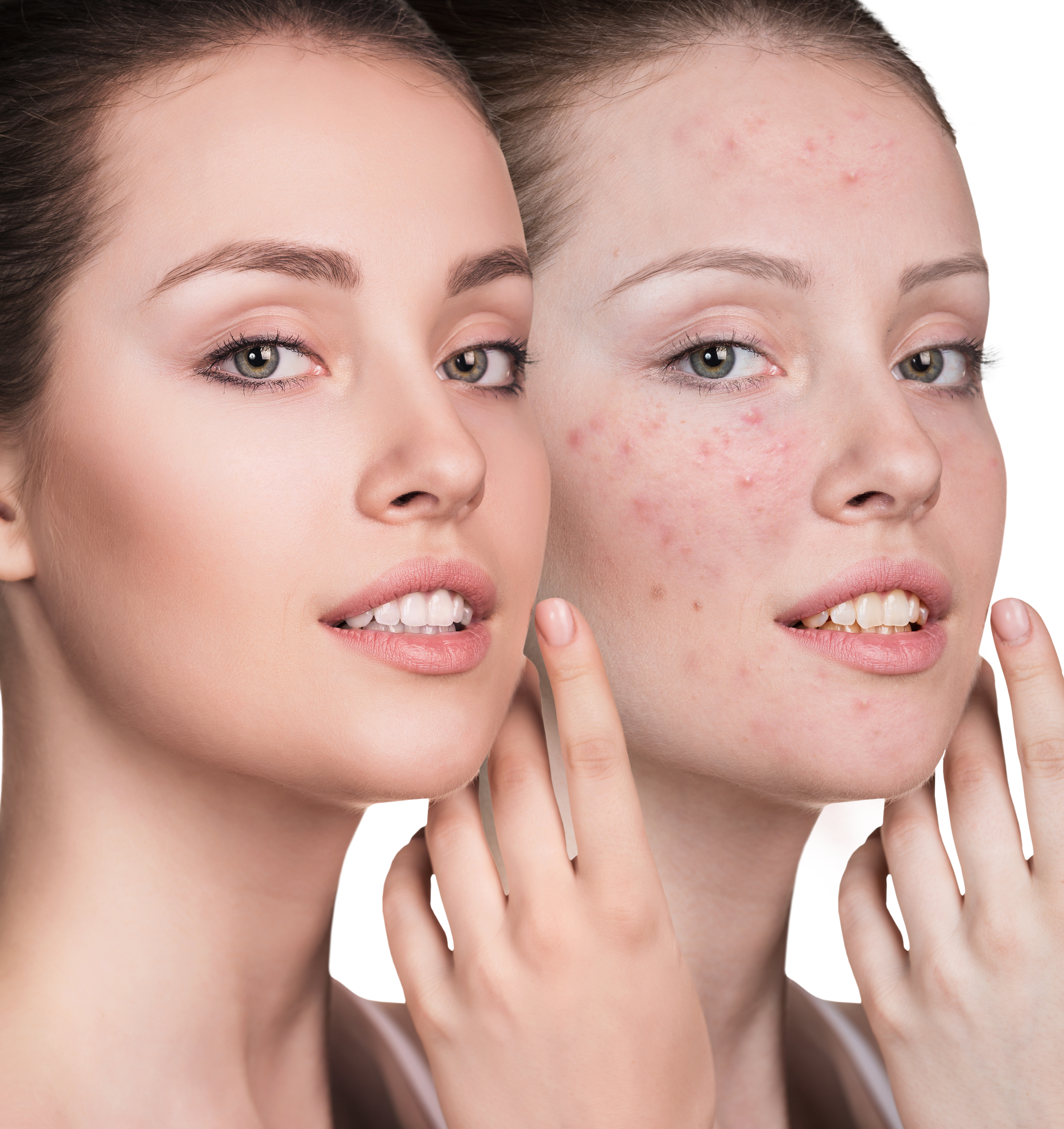 Clear Skin Acne Therapy
