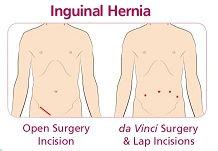 hernia-3.jpg