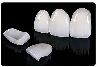 Veneers & Teeth Whitening