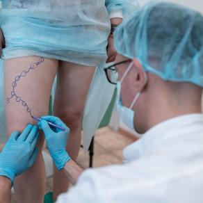 «Кроме скальпеля ничего не поможет»: опровергаем мифы среди больных варикозом