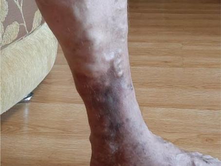 Что будет с ногой, если не лечить варикоз?