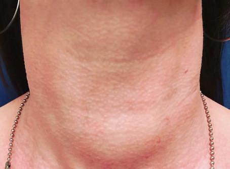 Ярослав Григоренко: Промедление может стоить щитовидной железы