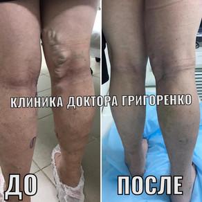 Лечение варикоза во Владивостоке и Находке