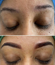 Before and After - Previous unlevel brow