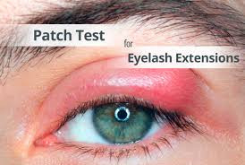 patch test for eyelash extension glue allergy
