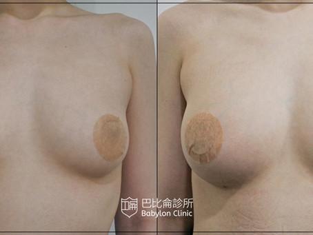 抽脂填胸-自體脂肪隆乳