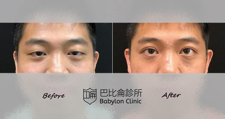 雙眼皮+提眼瞼肌手術