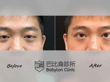 眼瞼下垂救星:提眼瞼肌手術 甩開疲憊加菲貓眼 解救大小眼