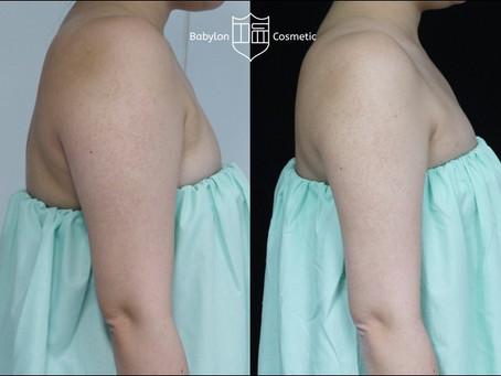 手臂雷射抽脂術後3個月