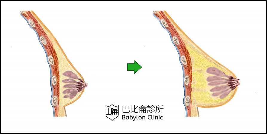 自體脂肪隆乳胸 fat transfer breast augmentation