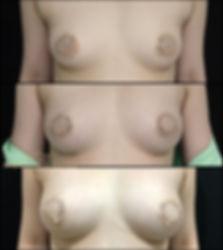 自體脂肪隆乳胸 fat transfer breast augmentation