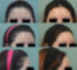 forehead all.jpg